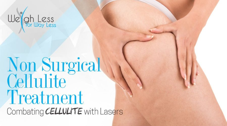 Nonsurgical Cellulite Treatment – Combating Cellulite with Lasers