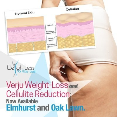 Verju Laser Weight Loss and Cellulite Reduction -Elmhurst and Oak Lawn, Chicago IL