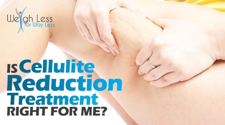 Is Cellulite Reduction Treatment Right for Me?